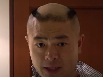 あばれる君の髪の毛がある時以降現在の画像2