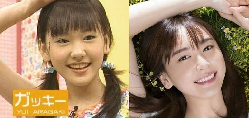 新垣結衣,昔,15歳,顔 画像,比較