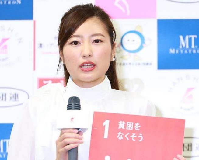 ミス日本の松井朝海が可愛くない!世間の評判