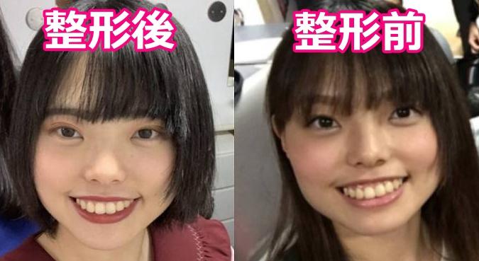きりやはるかの整形前と整形後の顔比較