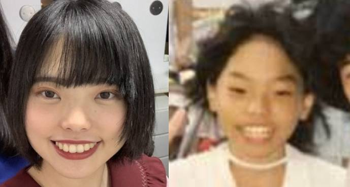きりやはるかの小学校時代と整形後の顔比較