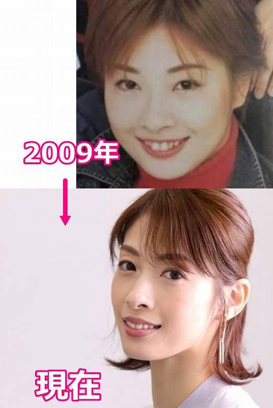 明日海りおの昔2009年の太ってた顔画像比較