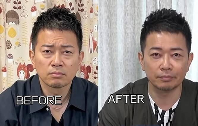 宮迫博之の顔が変わった整形のビフォーアフター1
