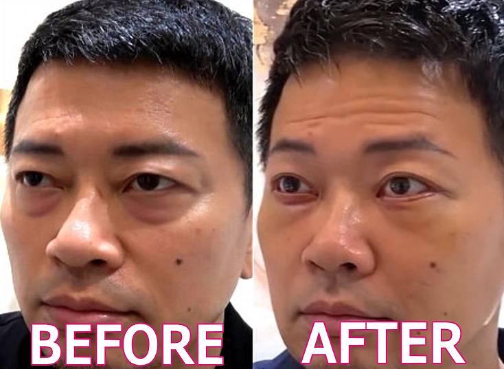 宮迫博之の顔が変わった整形のビフォーアフター2