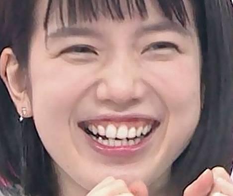 弘中綾香の顔が歪んで曲がっている原因は歯並び